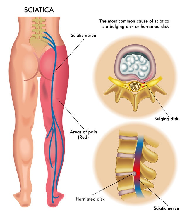 inflammation of the sciatic nerve—sciatica | sierra neurosurgery, Human Body